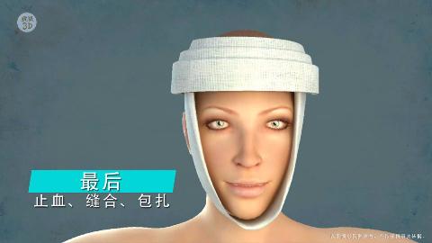 3D演示 面部整容都有哪些,看完还是原装的比较好