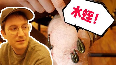 他用水蛭吸了我好多血!这是什么奇葩疗法?