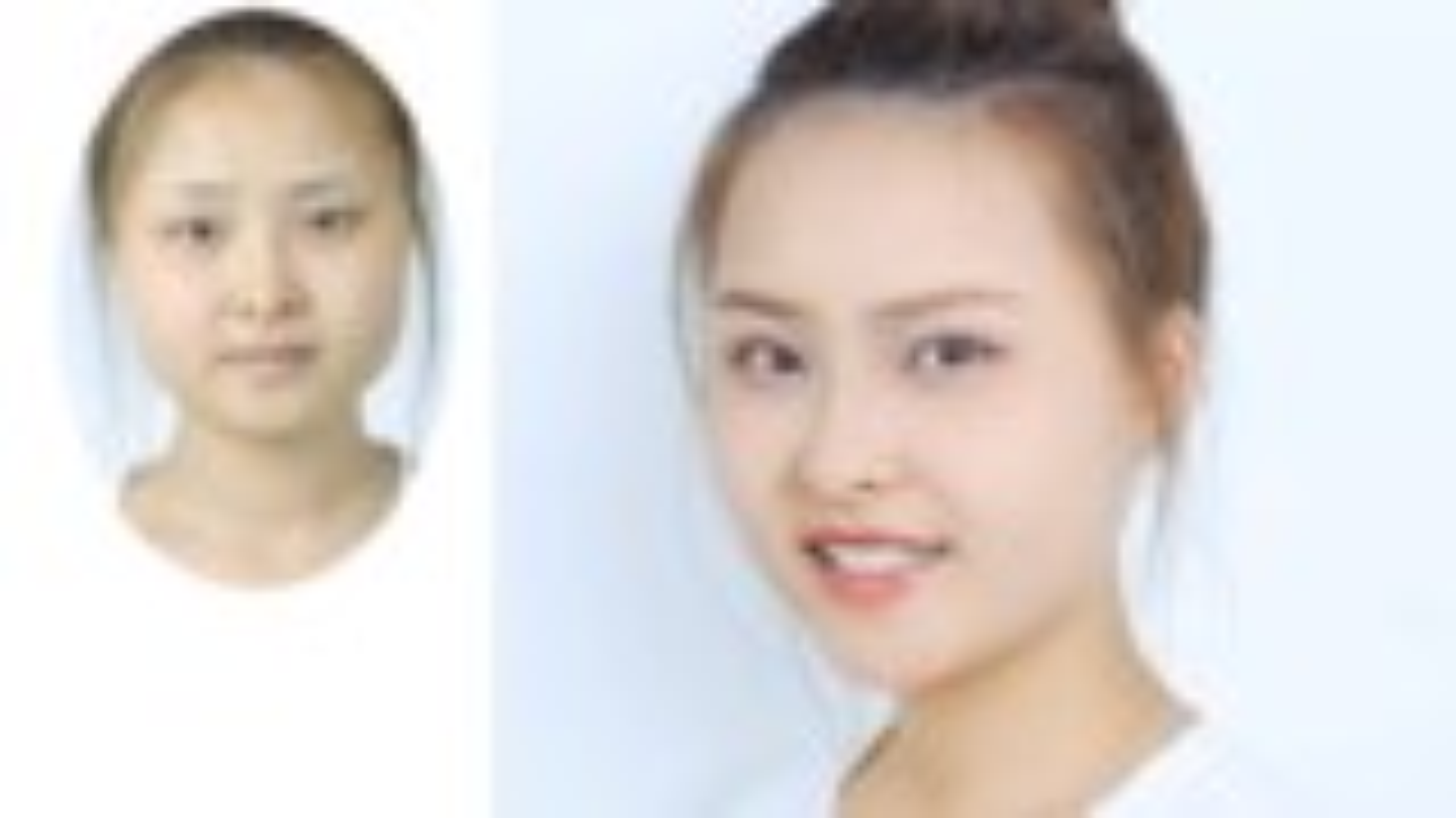 成都双眼皮:无神单眼皮女生割双眼皮恢复1月  眼睛放大有神 恢复超快
