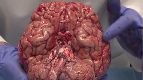 离体大脑结构