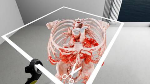 医用虚拟现实技术:诊断和手术规划的新机遇