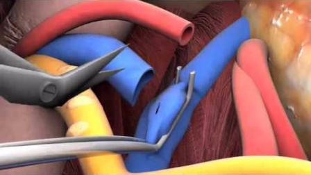 3D动画演示肾脏移植过程,看完感觉身体被掏空了