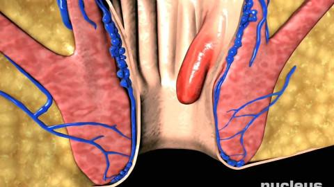 【3D演示】痔(痔疮)的发生及治疗