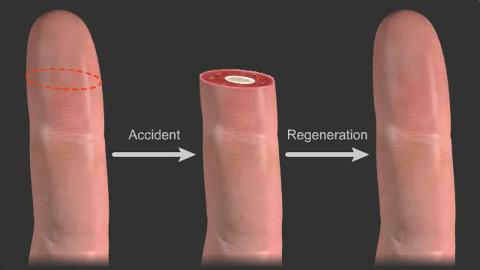 哈佛大学视频:再生与癌症,切掉头能再生,人体内再生失调导致癌症