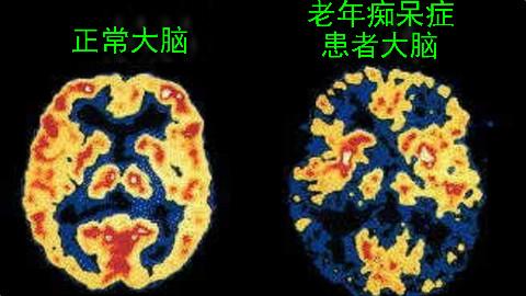 老年痴呆症能预防吗?不用怕!即使患老年痴呆症你仍能理解爱与喜悦