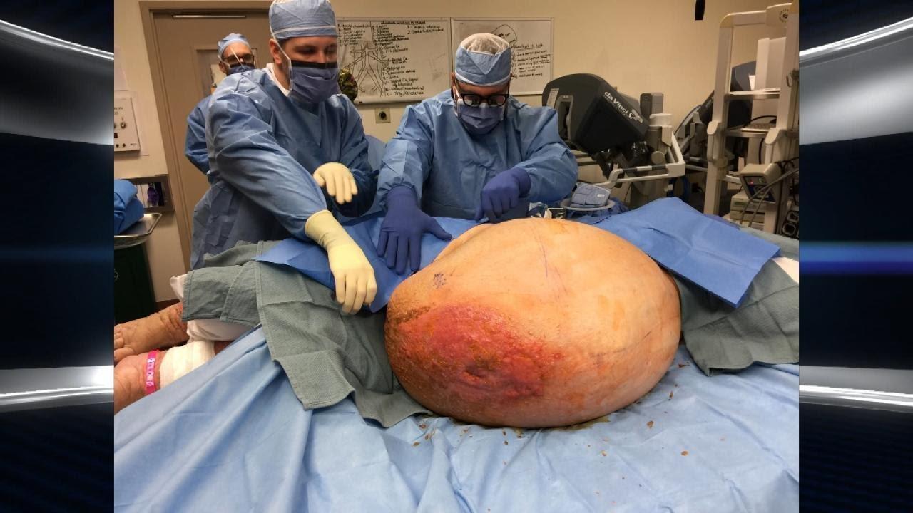 女子身上长了一个140斤的巨型肿瘤,切下来都花了整整1天!