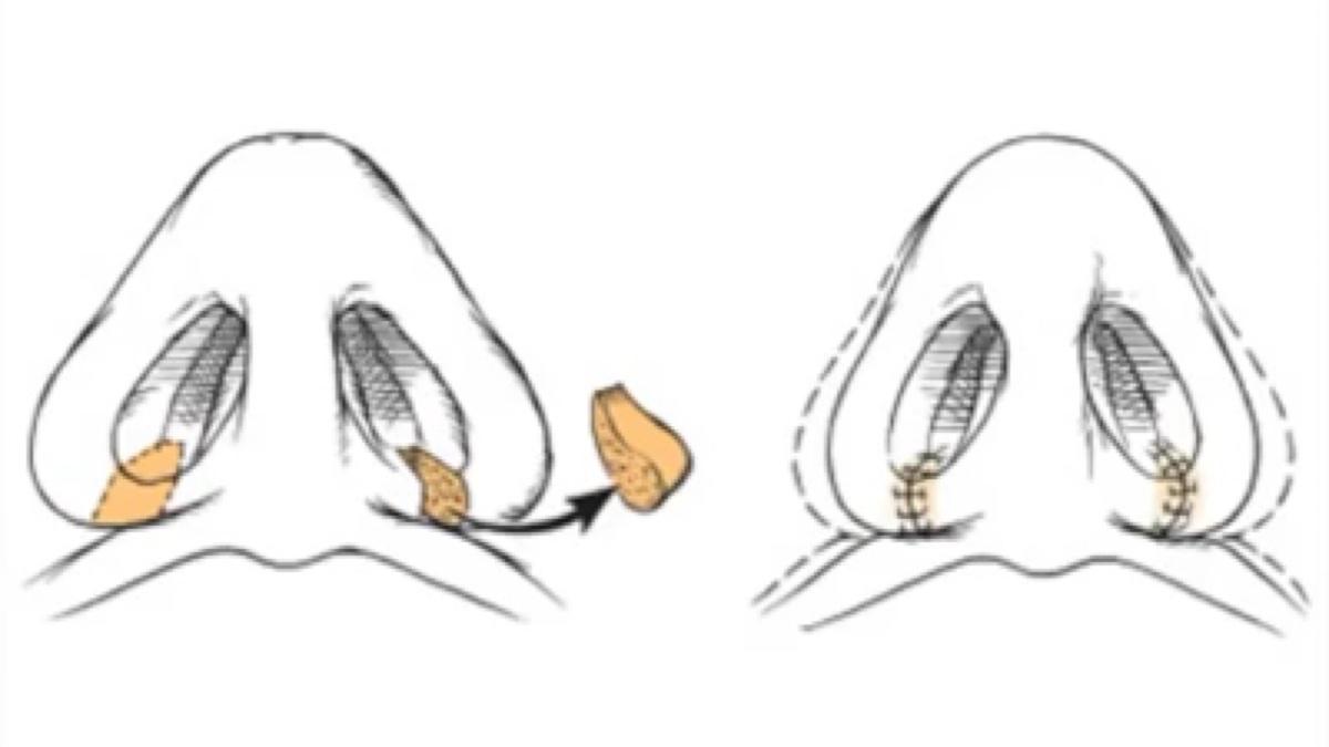 缩鼻翼sub