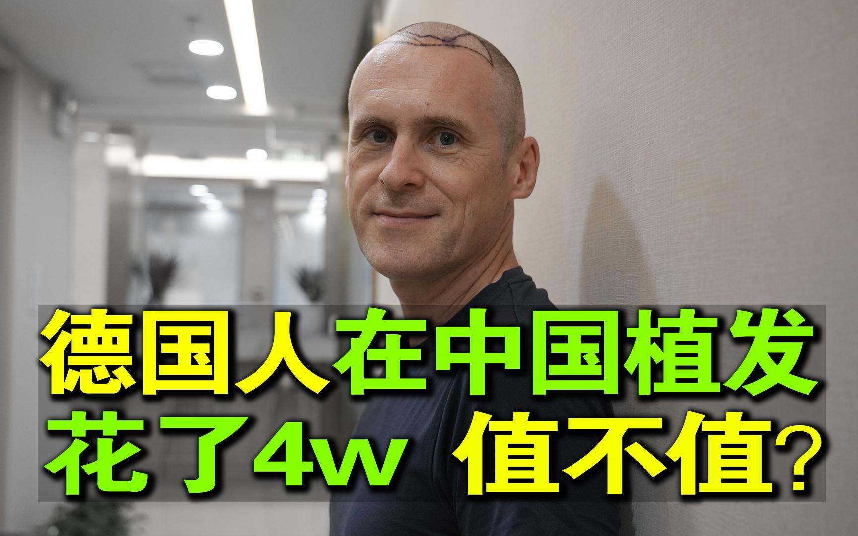 花费4W!德国人在中国植发全过程记录,大家觉得值吗?(全过程记录,悄悄看)