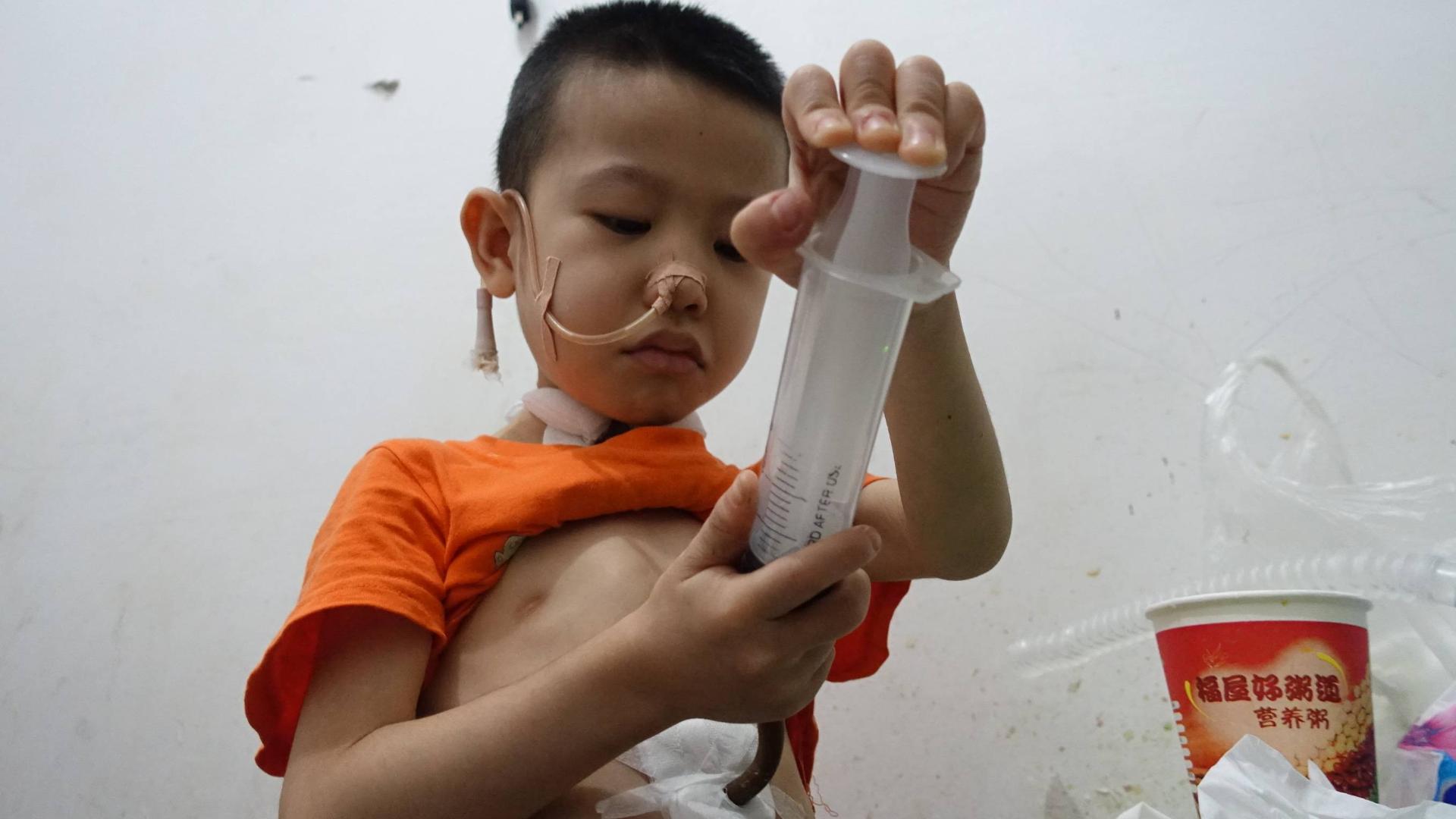 6岁娃误食高锰酸钾烧伤食道,为吃饱自己用针管往胃里打食