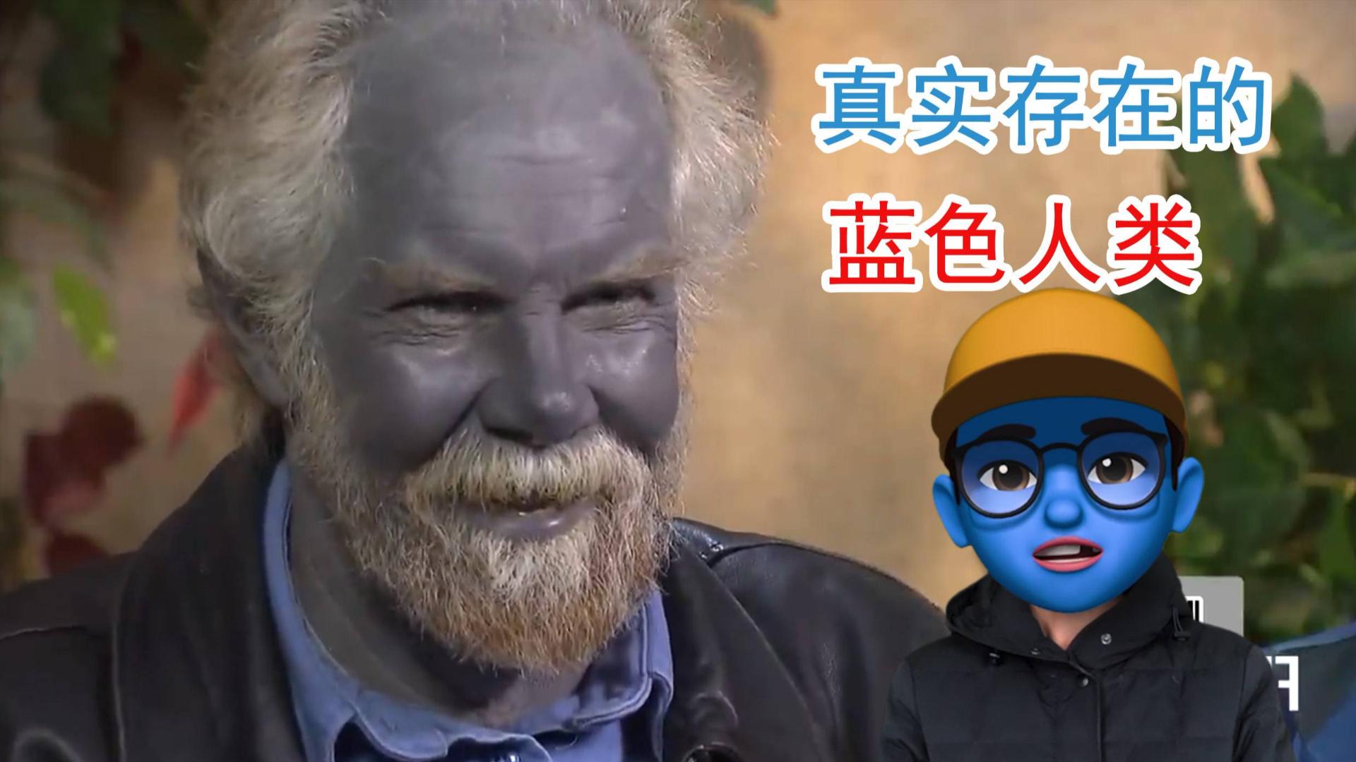 真实存在的蓝色人,蓝朋友