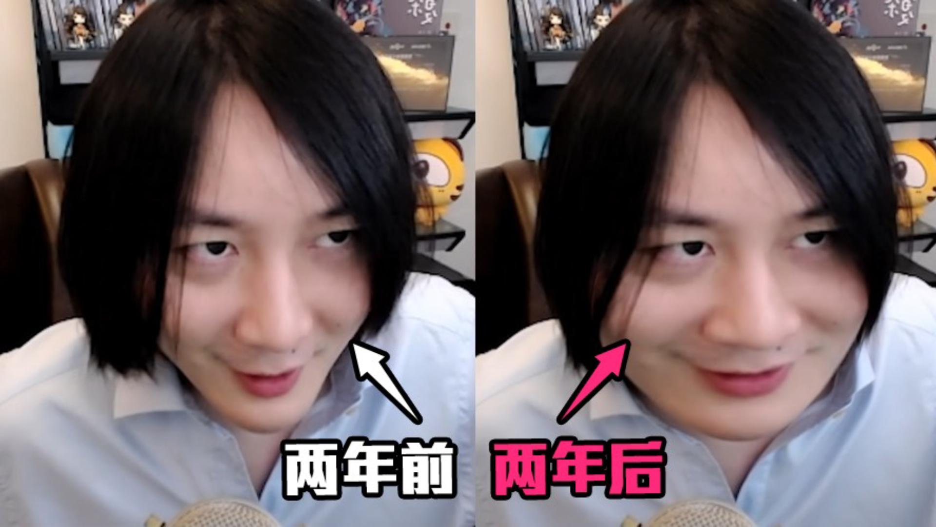 张大仙:这两年我确实膨胀了!但膨胀的是我的脸和肚子...