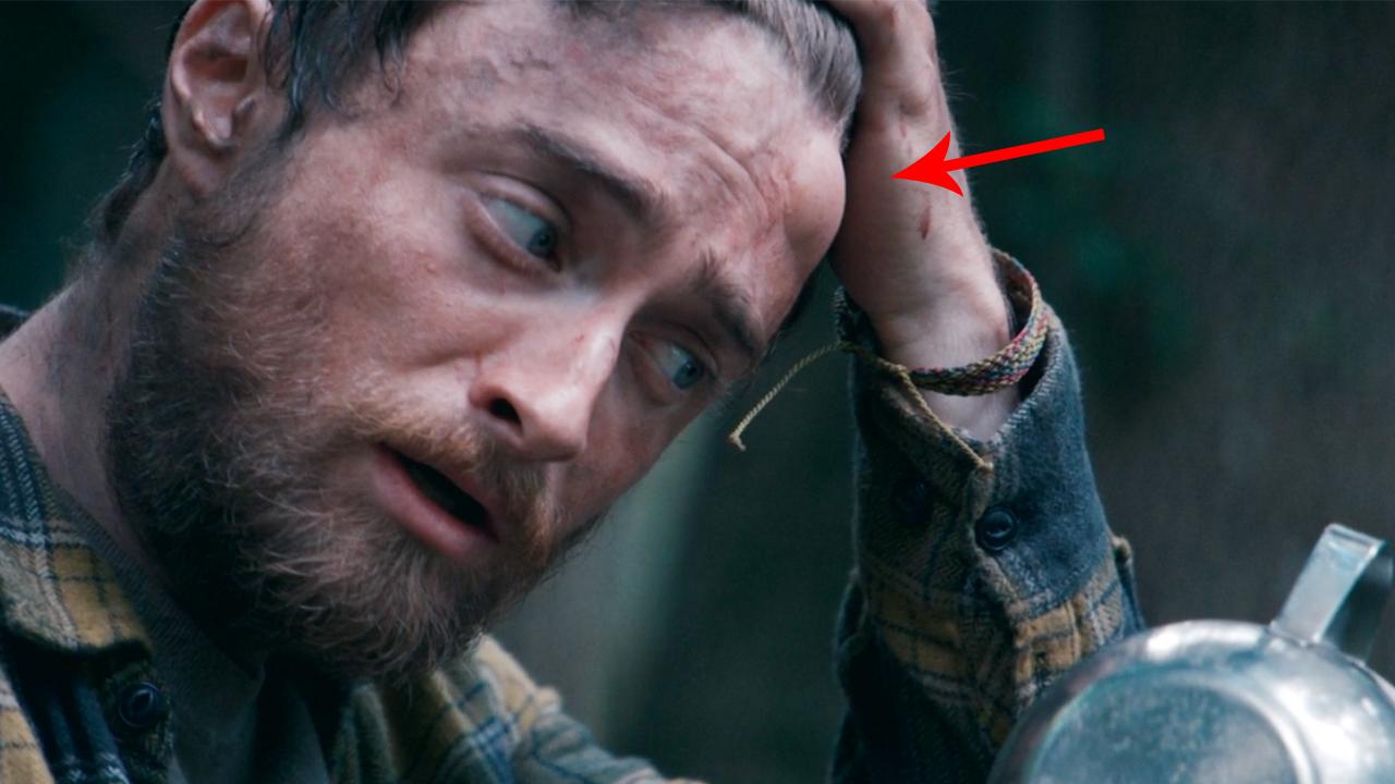 男子被困丛林,几天后头上长了个包,切开后被吓了一跳