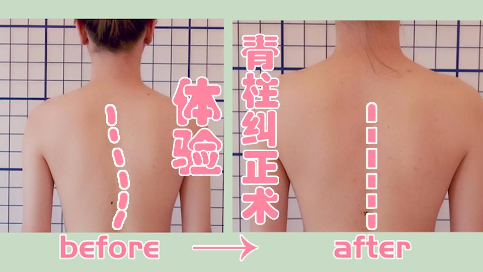 【木木】脊柱纠正术 明星康复师手把手带你康复训练和改善体态!