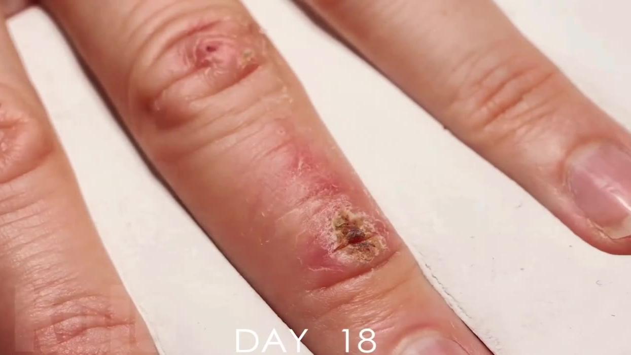 延时摄影——手指上的伤口在33天里的愈合过程