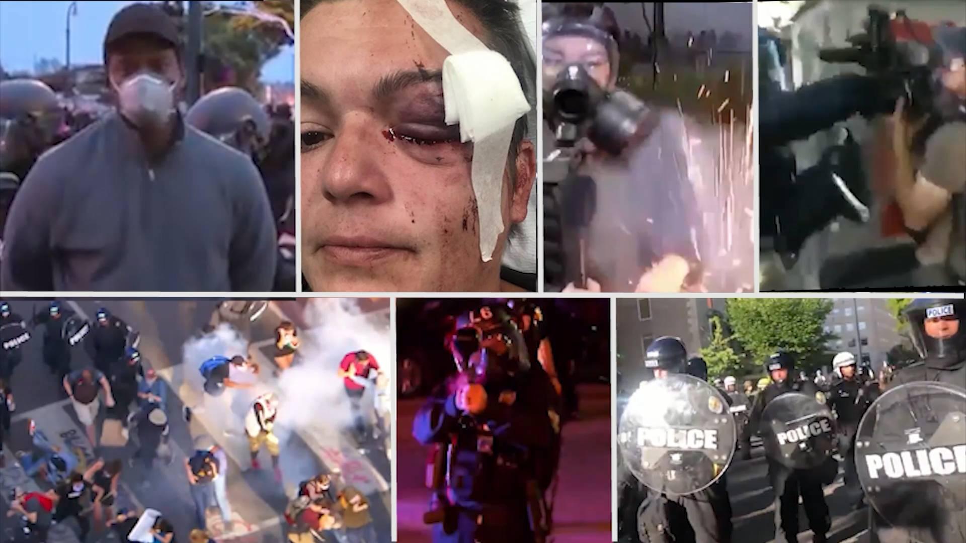 被逮捕、暴打、射击……多国媒体工作者遭遇美国警察暴力执法