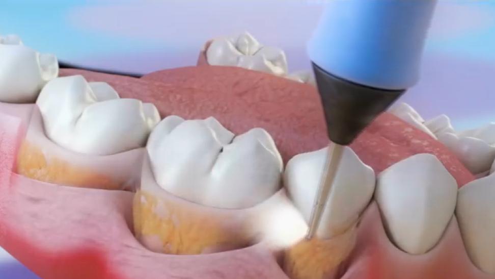 蛀牙有救了,照照激光就能让牙齿再生,这下不用安假牙了