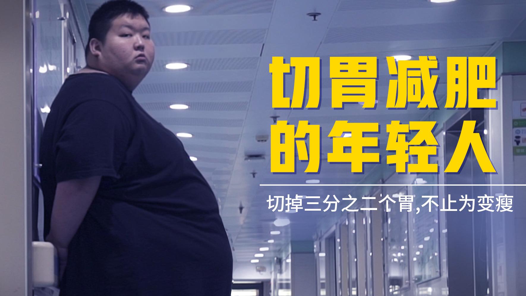 切胃减肥的年轻人:95后男孩体重500斤