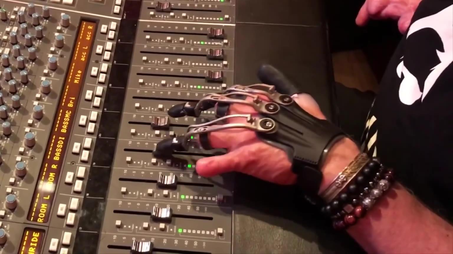 当假肢人造器官与科技相结合,竟然可以如此神奇