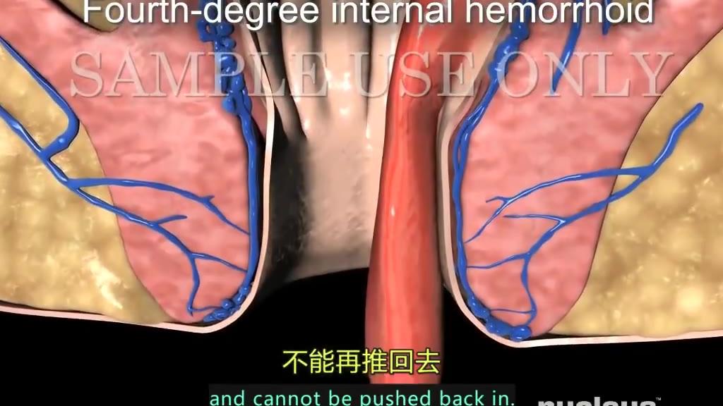3D医学动画,你的痔疮是如何形成,看的我菊花一紧