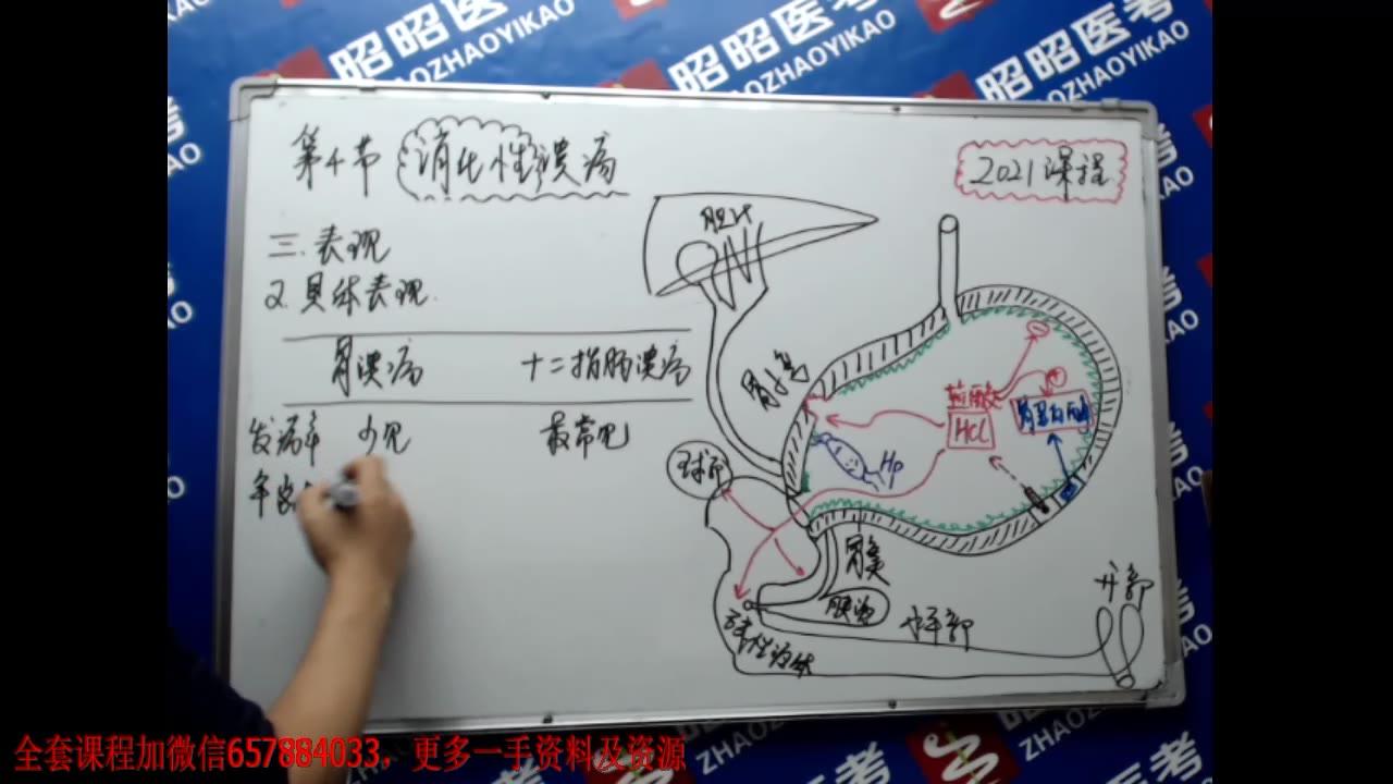 2021昭昭医考消化系统最新课-消化性溃疡视频  执业医师/助理课程