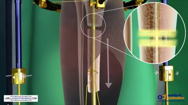 3D动画演示粉碎性骨折如何修复