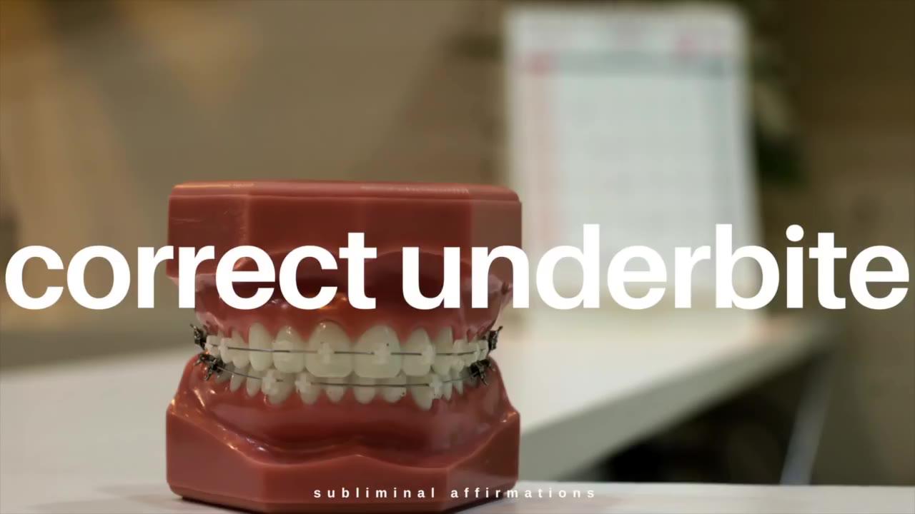 [Akuo] 快速修复下牙合